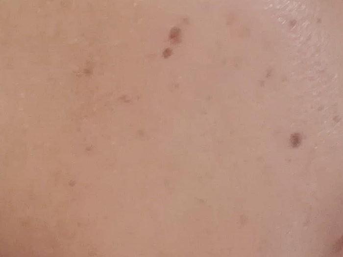 BBクリーム塗布後の写真