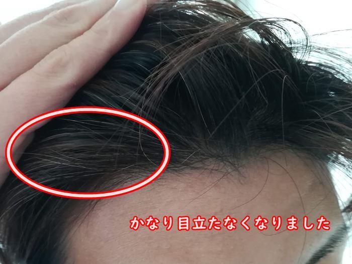 ROOT VANISHを塗った後の前髪の写真
